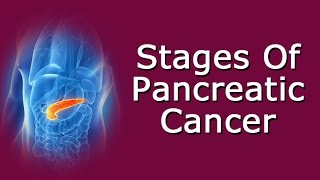 Related Videos: Pancreatic Cancer https://youtu.be/pbskOHAXpJg Signs Of Pancreatic Cancer https://youtu.be/Vdp1zb7QKsU Transcript: Stages Of Pancreatic ...