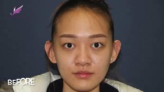 설명Double eyelid surgery Rhinoplasty Face contour surgery Fat transfer surgery Breast surgery.