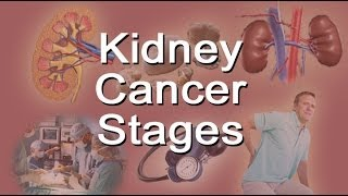 Click on http://stayhealthyvideos.com/kidneydisease to learn more about kidney health in general. Click on http://stayhealthyvideos.com/kidneydiet to get ...