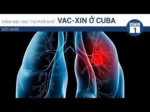Đánh bại' ung thư phổi nhờ vac-xin ở Cuba | VTC1 - Thời lượng: 81 giây.