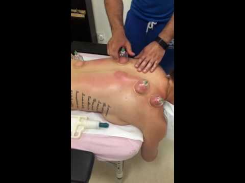 Traditional chinese medicine - vacuum cupping therapy