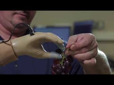 Prosthetic Hand Restores Amputee s Sense of Touch
