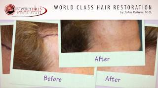 Beverly Hills Hair Transplant Surgeon Results- Dr. Kahen Patient