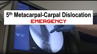 This video demonstrates a relatively rare dislocation of the 5th Metacarpal from the adjoining carpal bone (hamate).  The reduction procedure is nicely demonstrated in this video.