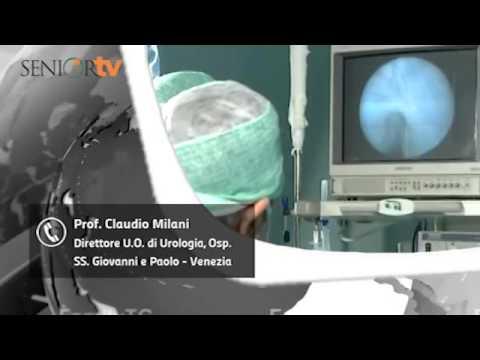 Ipertrofia Prostatica Benigna: anomalia che colpisce gli uomini sopra i 40 anni