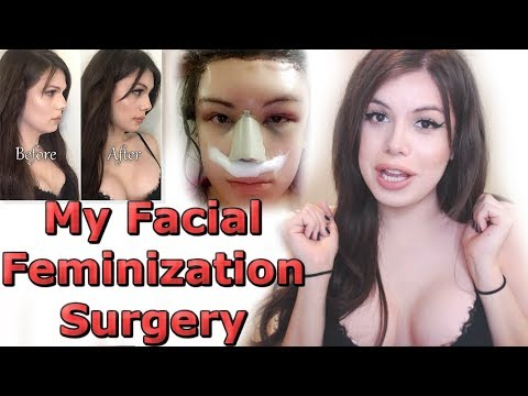 I'M BACK! My Facial Feminization Surgery (видео)
