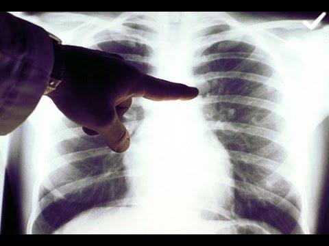 Лечение рака легких в клиниках за рубежом
