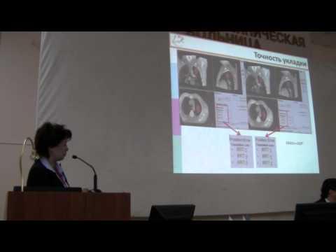 Стереотаксическая дистанционная лучевая терапия начальных форм рака легкого