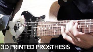 [Ciencia] Prótesis 3D para tocar guitarra