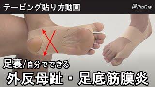 【足底腱膜炎の方必見!】足裏アーチのテーピング