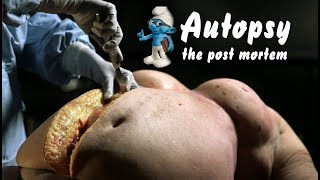 Nonton Obesity   The Post Mortem Film Subtitle Indonesia Streaming Movie Download