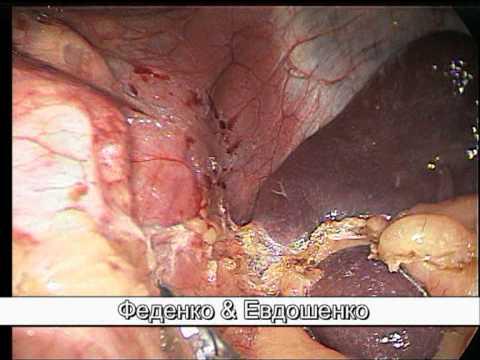 Слив гастрэктомия - Рукавная гастропластика