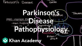 Putting it all together - Pathophysiology of Parkinson's Diease