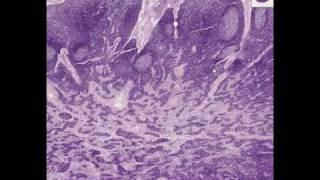 Videos de Histología y Patología