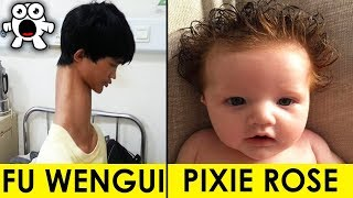 Video Real Kids Born With Unbelievable Incredible Features MP3, 3GP, MP4, WEBM, AVI, FLV Maret 2019