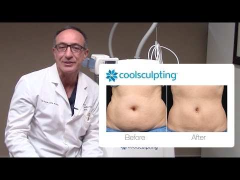CoolSculpting Procedure Before and After with Dr. Lista