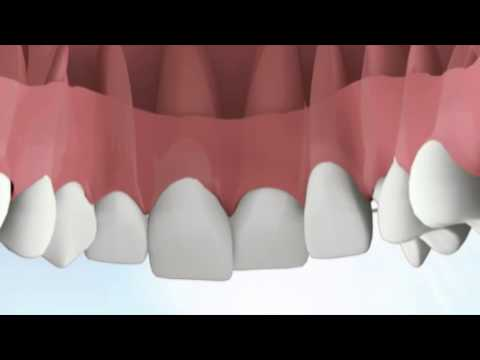 What is Six Month Smile? - Notley Dental Care