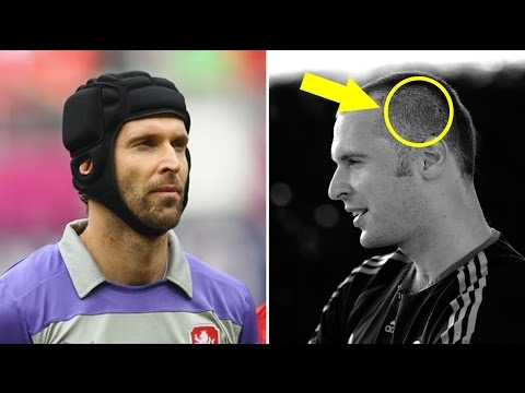 Do you know why Petr Cech wearing a helmet on his head ?