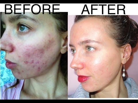 """videoshock: """"come sono riuscita a curare un tremendo eczema col crudismo"""""""