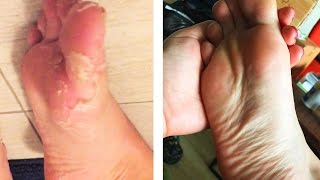 People Peel Their Foot Skin For The First Time