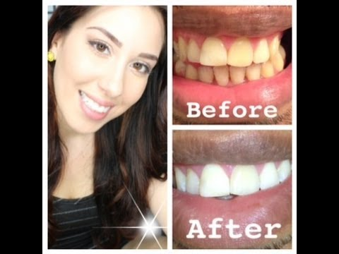 Teeth - Where to buy this product: http://www.smilebrilliant.com/product/teeth-whitening-trays#leelee Coupon code for my viewers!! Enter LeeLee for 15% OFF whatever ...