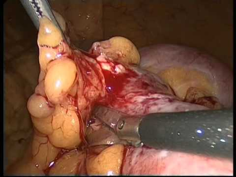 Intestinal obstruction due to perforation from fish bone. Laparoscopic approach