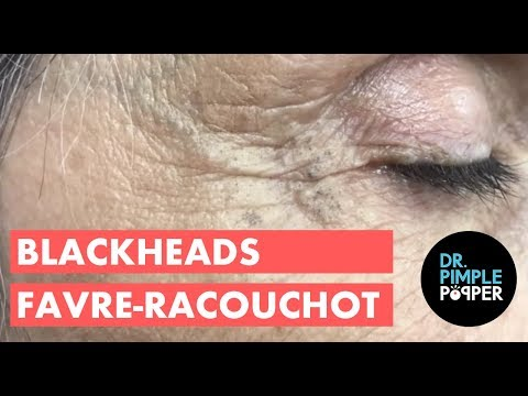Amazing Blackhead Patch!