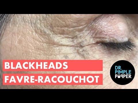 Amazing Blackhead Patch!