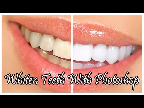 How To Whiten Teeth In Ps With Pictures Videos Answermeup