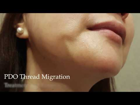 PDO Thread Lift Complication - Thread Migration. Removal of thread