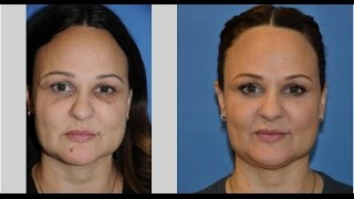 Learn more about Miami's Halo facial treatment!
