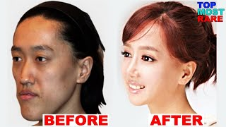 Video 50 Korean Plastic Surgery Before and After Photos MP3, 3GP, MP4, WEBM, AVI, FLV Maret 2018