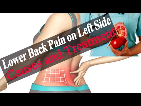 Lower Back Pain on Left Side – Causes of Lower Back Pain Left Side Above Hip  Causes and Treatment