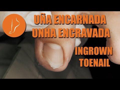 Videos de uñas - Uña encarnada - Unha encravada - Ingrown toenail [Podología Integral]