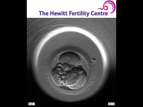 Hewitt Fertility Centre (Sophia Colton) - 5 day blastocyst