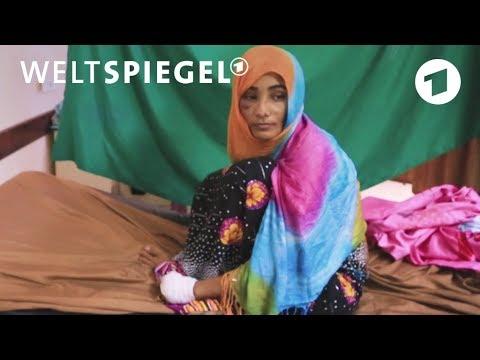 Jemen: Opfer des Krieges - häufig trifft es auch Zivili ...