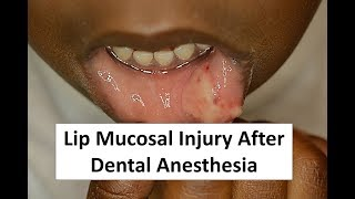 This video demonstrates the oral mucosal injury that sometimes happens after a child has had local anesthesia for dental work.