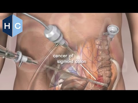 Colon Surgery - http://www.houstoncolon.com/laparoscopic-surgery Laparoscopic Colon Surgery is the preferred technique performed by the surgeons at Colorectal Surgical Assoc...