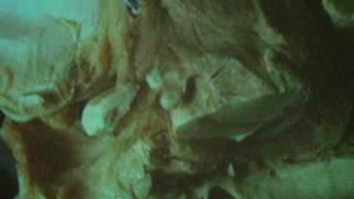Neuroanatomia Repaso, Diseccion Del Fornix A Través De Método Klingler