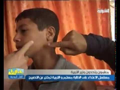 مدرس يتعدى بالضرب على طالب في ديالى - اهل المدينة ليوم 10-3-2014