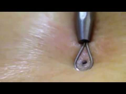 close up blackhead comedone extract 02 02