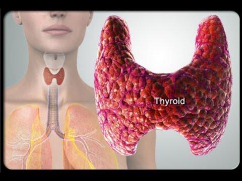 Тиреотоксикоз. Лечение тиреотоксикоза. Клиника и диагностика тиреотоксикоза.