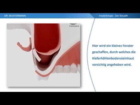 Ablauf der Behandlung - Der Sinuslift