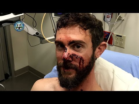 Guy Speaks About Surviving A Mountain Lion Attack