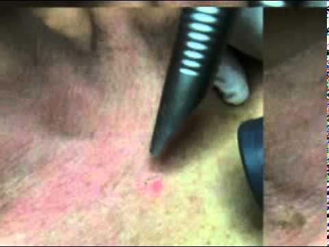 comment guerir la keratose pilaire
