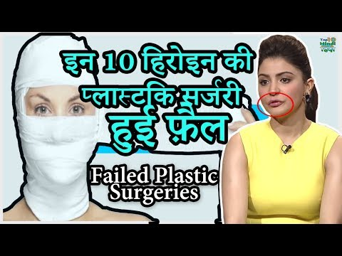 Video 10 Bollywood Celebrities Plastic Surgery GONE Terribly Wrong | हिंदी download in MP3, 3GP, MP4, WEBM, AVI, FLV January 2017