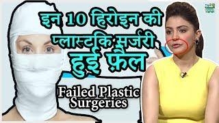 Video 10 Bollywood Celebrities Plastic Surgery GONE Terribly Wrong | हिंदी MP3, 3GP, MP4, WEBM, AVI, FLV Agustus 2018
