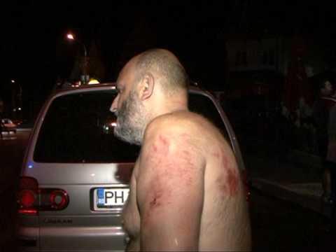 Turist ceh atacat de urs