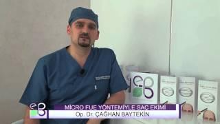 MİCRO FUE YÖNTEMİYLE SAÇ EKİMİ - Op. Dr. Çağhan Baytekin (Clinic Baytekin)