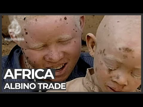 african - Five men in Burundi have been jailed for their part in the murder of 11 albinos whose body organs were sold for witchcraft. Some witch doctors claim the body...